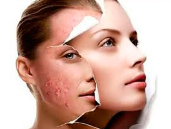 aging face mask